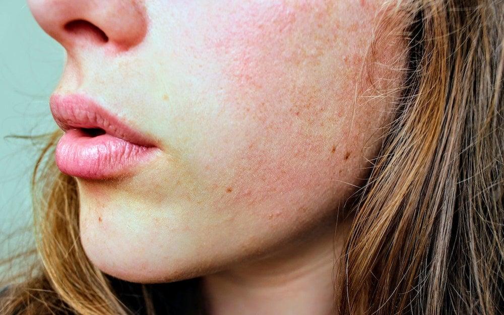 unruhige Haut glatte ebenmäßige Haut bekommen
